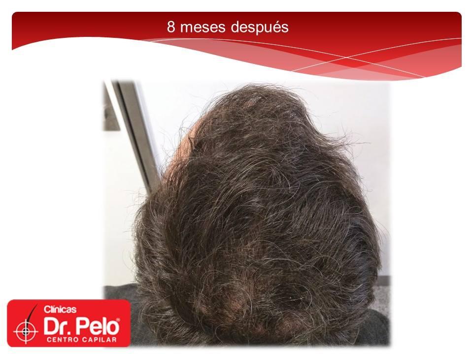 [Imagen: injerto-capilar-fue-dr-pelo-dr-afonso-junior-18.jpg]
