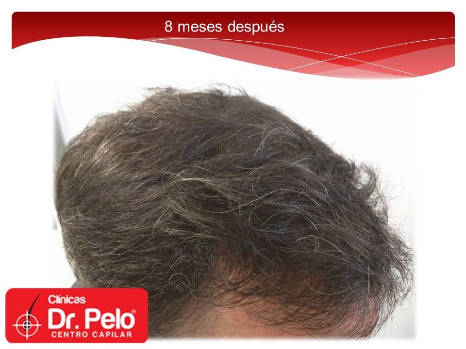 [Imagen: injerto-capilar-fue-dr-pelo-dr-afonso-junior-19.jpg]