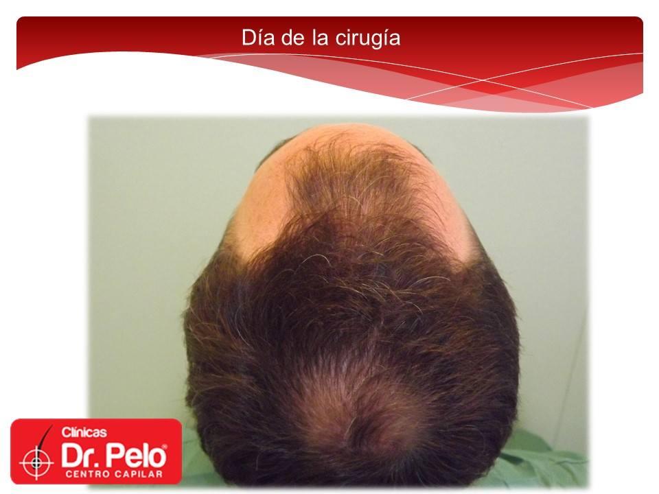 [Imagen: injerto-capilar-fue-dr-pelo-dr-afonso-junior-2.jpg]