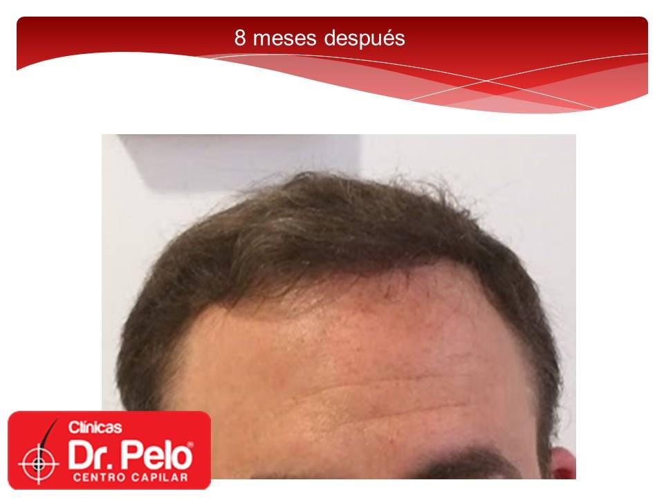 [Imagen: injerto-capilar-fue-dr-pelo-dr-afonso-junior-20.jpg]