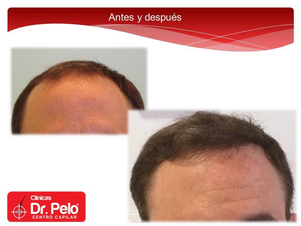 [Imagen: injerto-capilar-fue-dr-pelo-dr-afonso-junior-21.jpg]