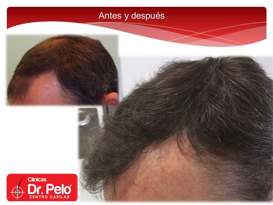 [Imagen: injerto-capilar-fue-dr-pelo-dr-afonso-junior-23.jpg]