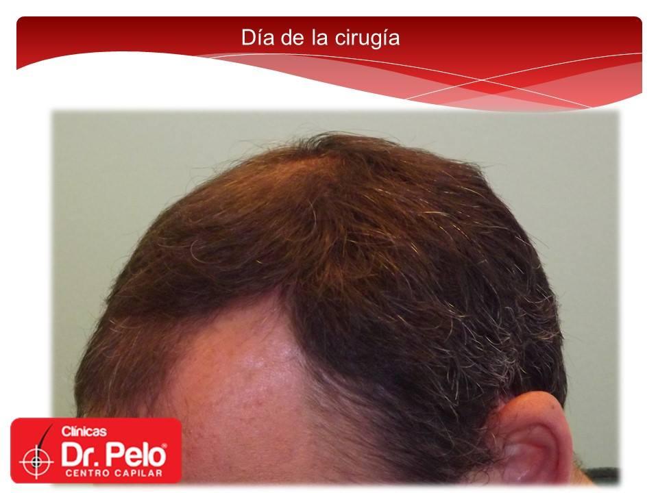 [Imagen: injerto-capilar-fue-dr-pelo-dr-afonso-junior-3.jpg]