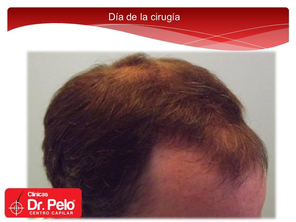 [Imagen: injerto-capilar-fue-dr-pelo-dr-afonso-junior-4.jpg]