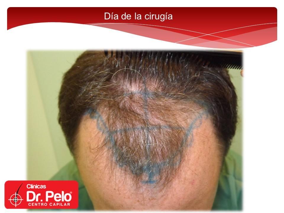 [Imagen: injerto-capilar-fue-dr-pelo-dr-afonso-junior-5.jpg]