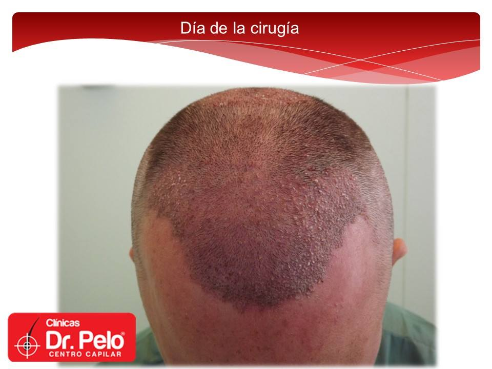 [Imagen: injerto-capilar-fue-dr-pelo-dr-afonso-junior-6.jpg]