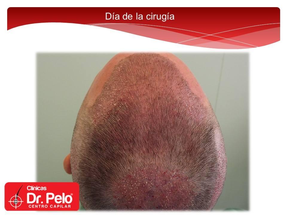 [Imagen: injerto-capilar-fue-dr-pelo-dr-afonso-junior-7.jpg]