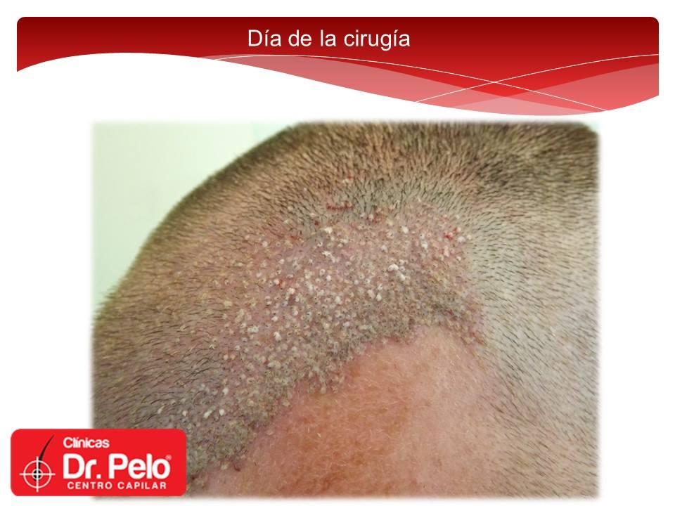 [Imagen: injerto-capilar-fue-dr-pelo-dr-afonso-junior-8.jpg]