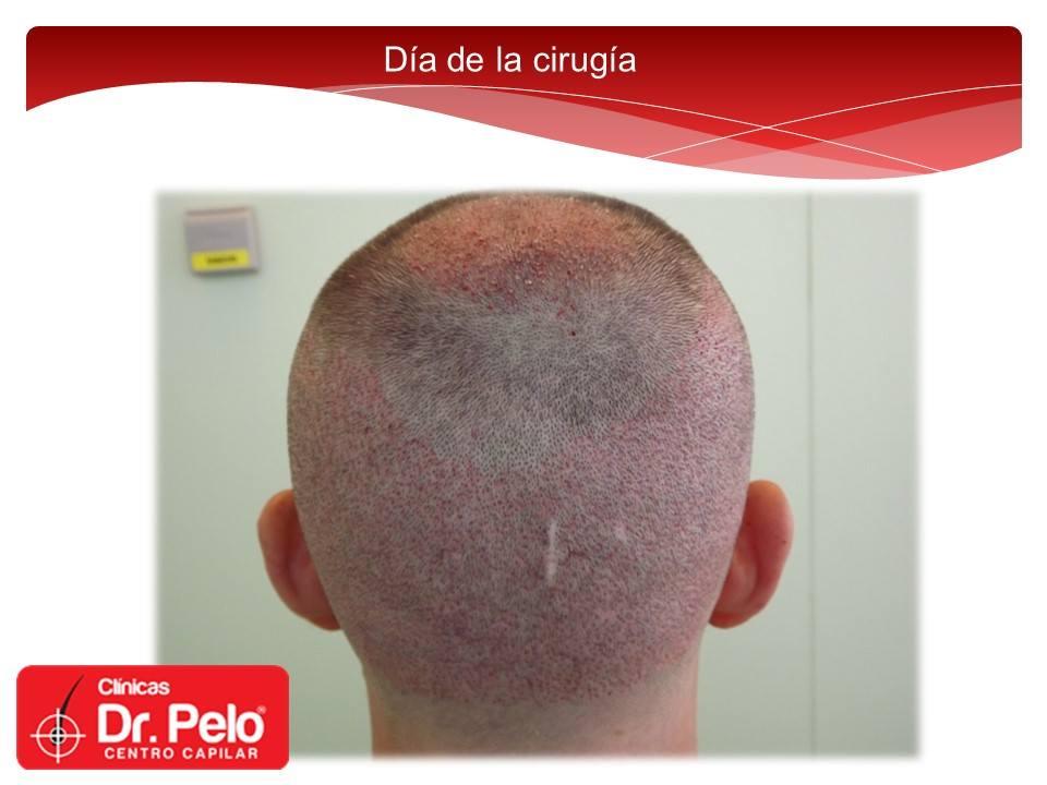 [Imagen: injerto-capilar-fue-dr-pelo-dr-afonso-junior-9.jpg]