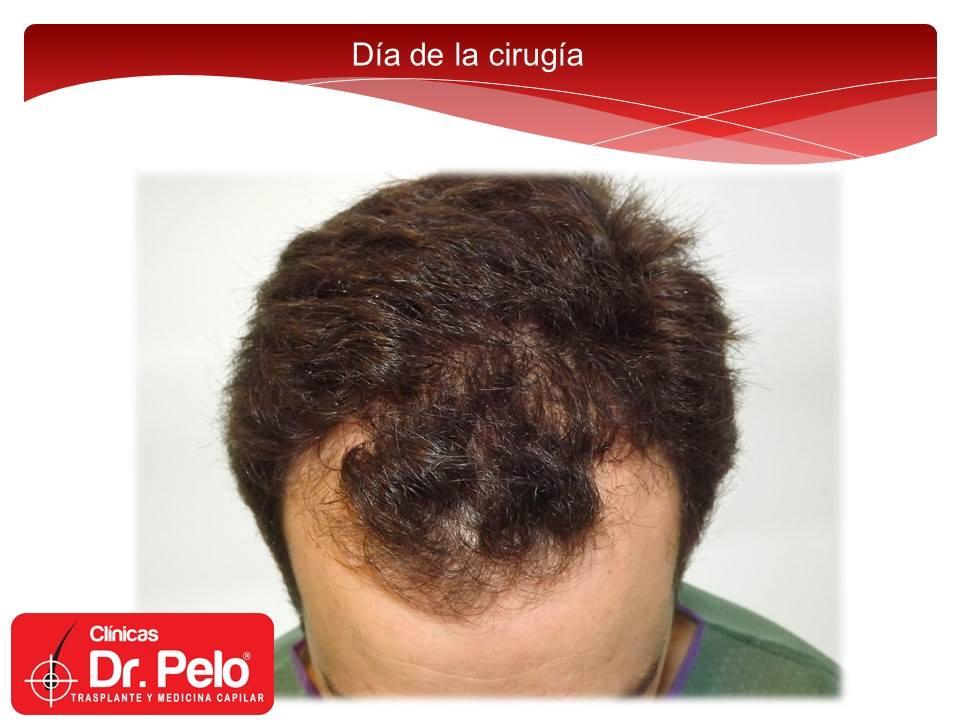 [Imagen: injerto-capilar-tecnica-fue-dr-afonso-ju...pelo-1.jpg]