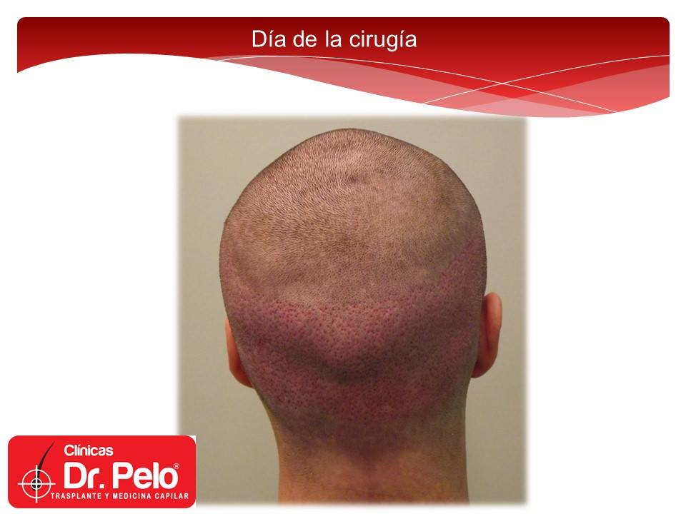 [Imagen: injerto-capilar-tecnica-fue-dr-afonso-ju...elo-10.jpg]