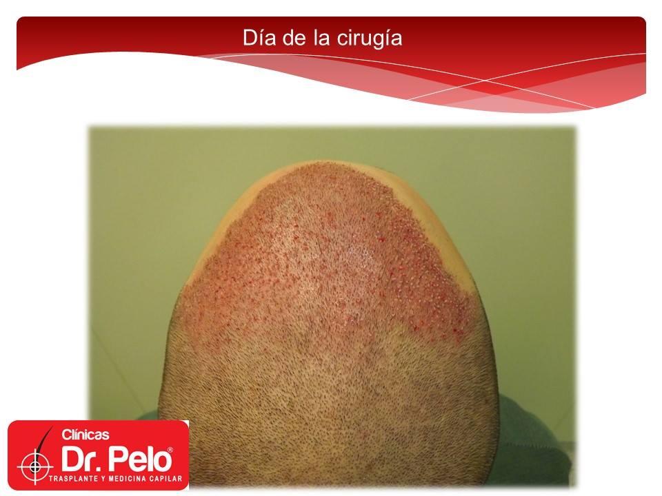 [Imagen: injerto-capilar-tecnica-fue-dr-afonso-ju...elo-11.jpg]