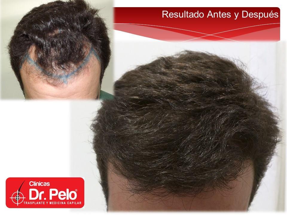 injerto-capilar-tecnica-fue-dr-afonso-junior-clinicas-dr-pelo (17)