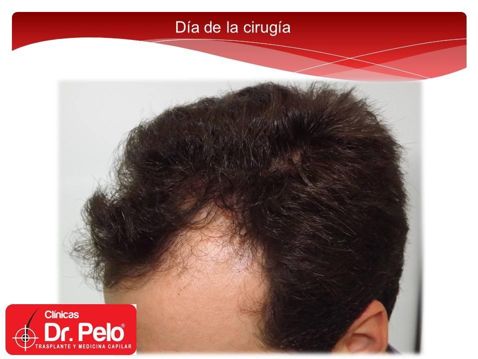 [Imagen: injerto-capilar-tecnica-fue-dr-afonso-ju...pelo-2.jpg]
