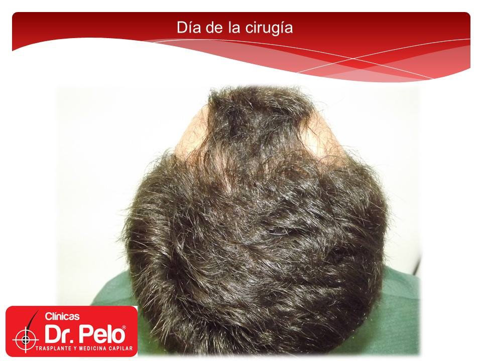 [Imagen: injerto-capilar-tecnica-fue-dr-afonso-ju...pelo-3.jpg]