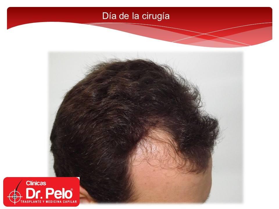 [Imagen: injerto-capilar-tecnica-fue-dr-afonso-ju...pelo-4.jpg]