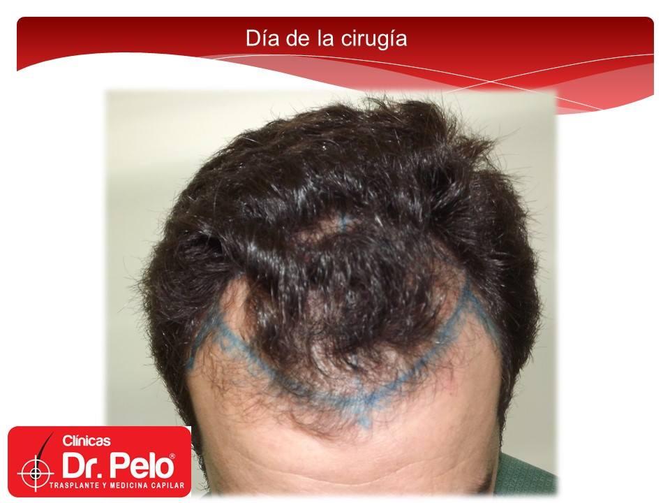 [Imagen: injerto-capilar-tecnica-fue-dr-afonso-ju...pelo-5.jpg]