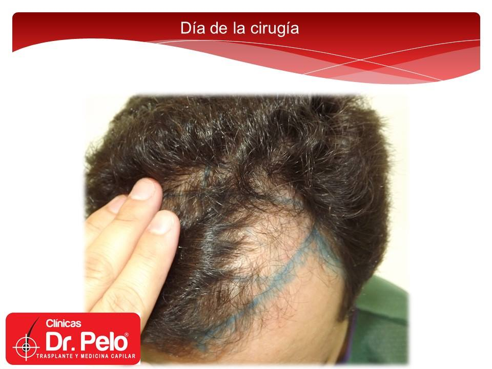 [Imagen: injerto-capilar-tecnica-fue-dr-afonso-ju...pelo-6.jpg]