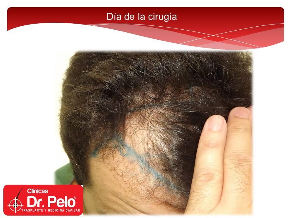 [Imagen: injerto-capilar-tecnica-fue-dr-afonso-ju...pelo-7.jpg]