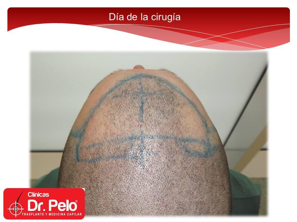 [Imagen: injerto-capilar-tecnica-fue-dr-afonso-ju...pelo-8.jpg]