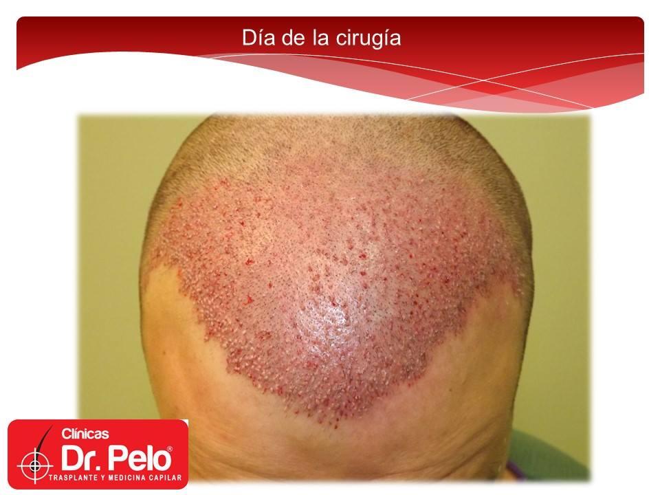 [Imagen: injerto-capilar-tecnica-fue-dr-afonso-ju...pelo-9.jpg]