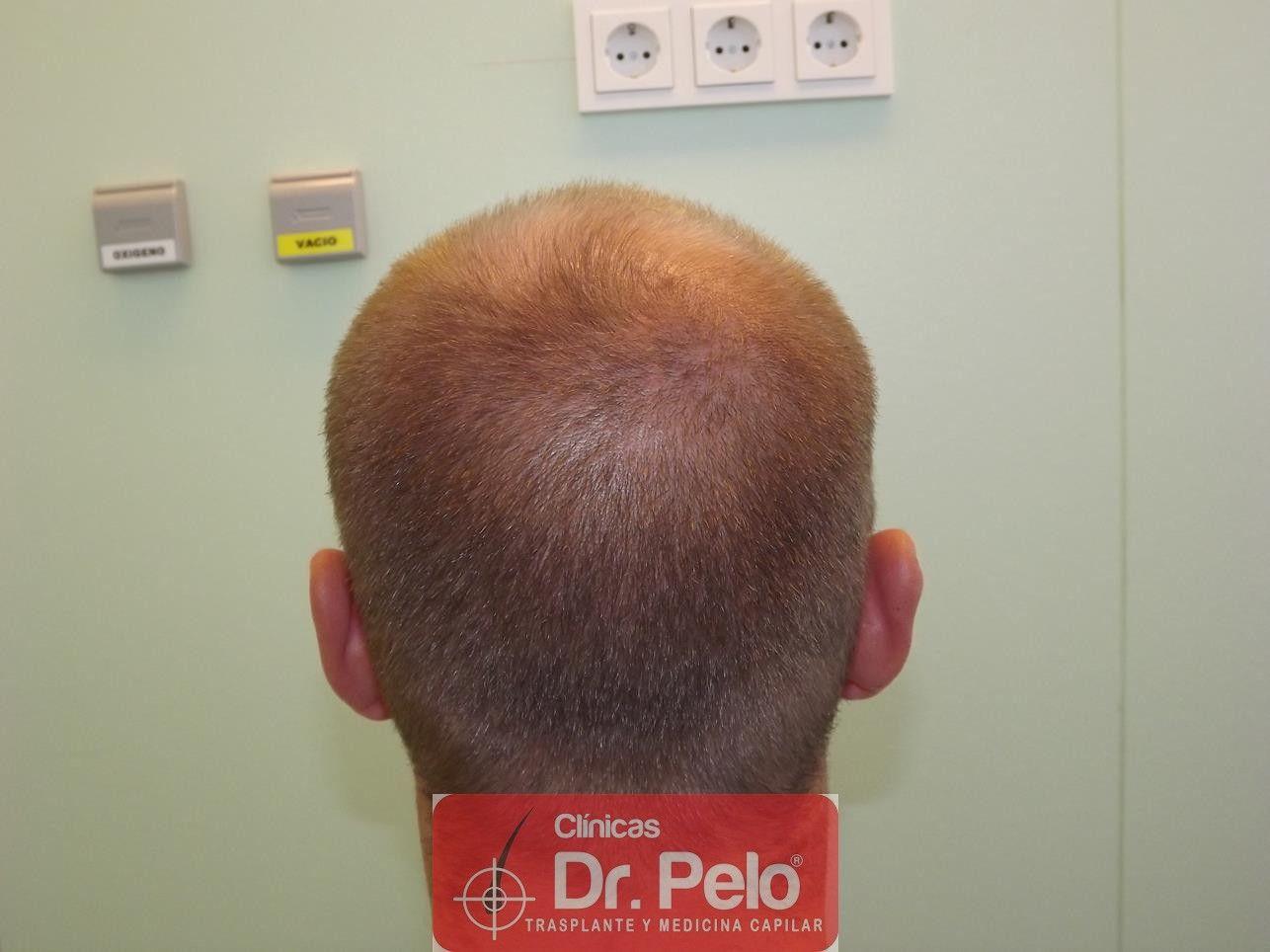 [Imagen: trasplante-pelo-fueDSCF8124-Copy.jpg]