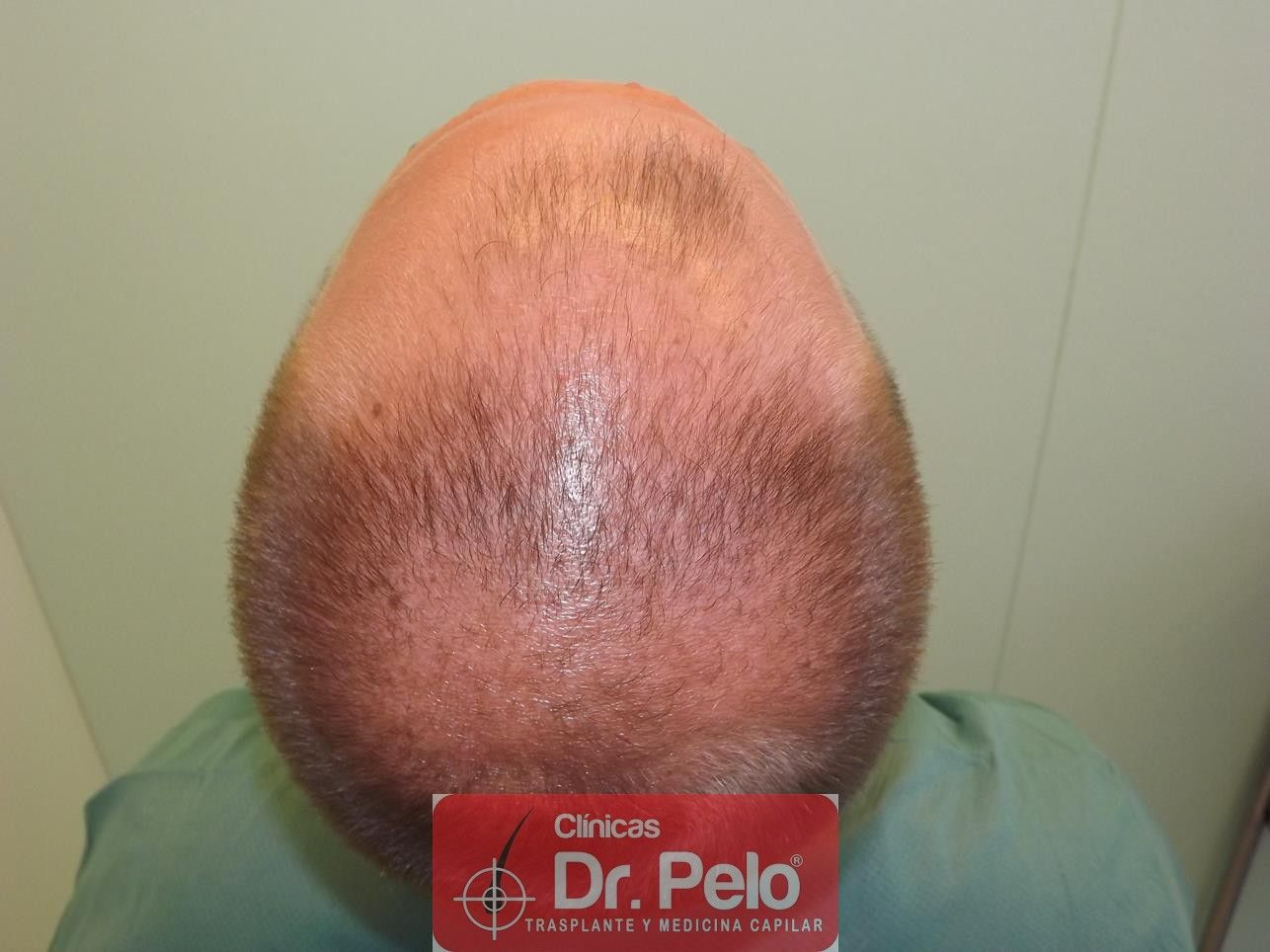 [Imagen: trasplante-pelo-fueDSCF8125-Copy.jpg]