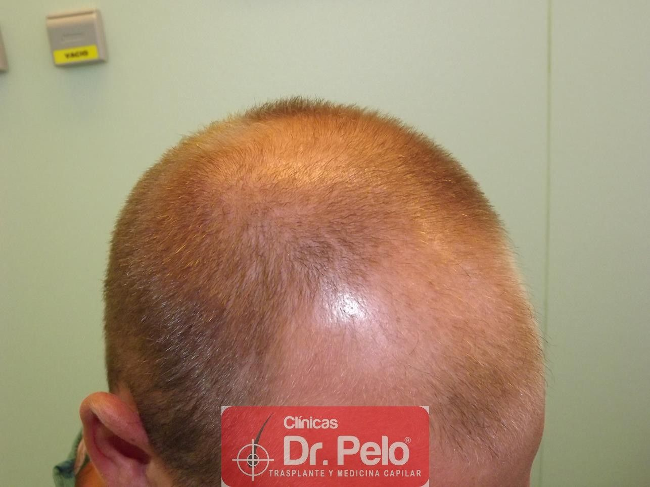 [Imagen: trasplante-pelo-fueDSCF8128-Copy.jpg]