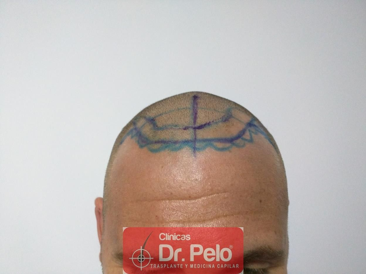 [Imagen: trasplante-pelo-fueIMG_20160614_084031-Copy.jpg]
