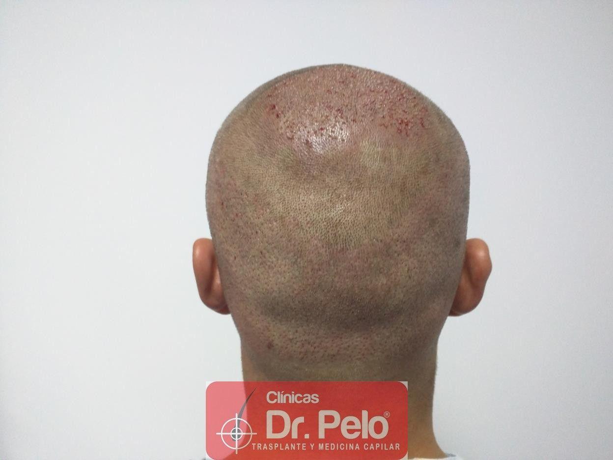 [Imagen: trasplante-pelo-fueIMG_20160614_193740-Copy.jpg]