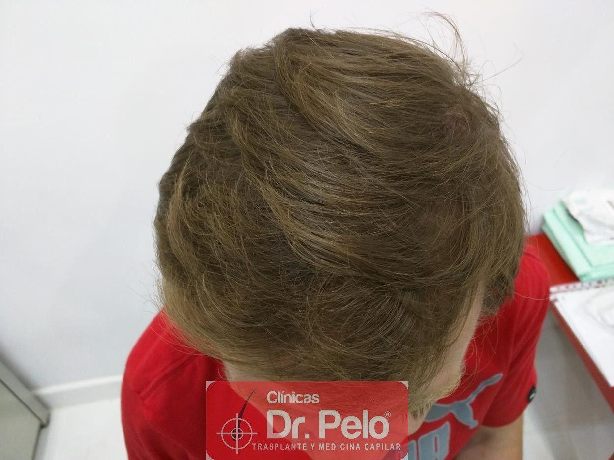 [Imagen: tratameinto-capilar-mesoterapia-laser-ledhair-10.jpg]