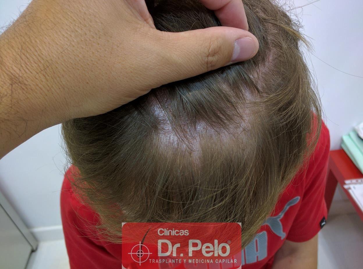 [Imagen: tratameinto-capilar-mesoterapia-laser-ledhair-11.jpg]