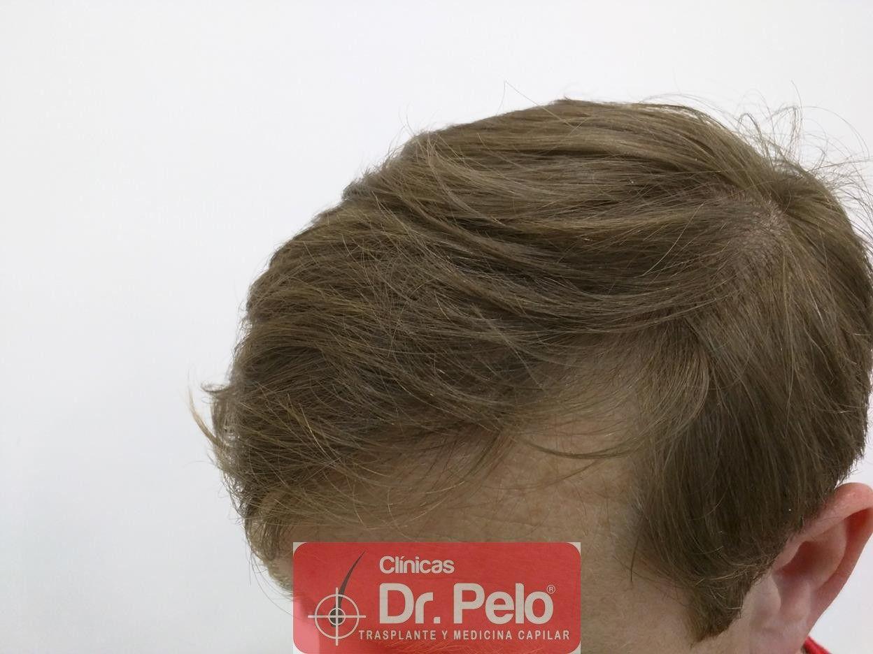 [Imagen: tratameinto-capilar-mesoterapia-laser-ledhair-12.jpg]