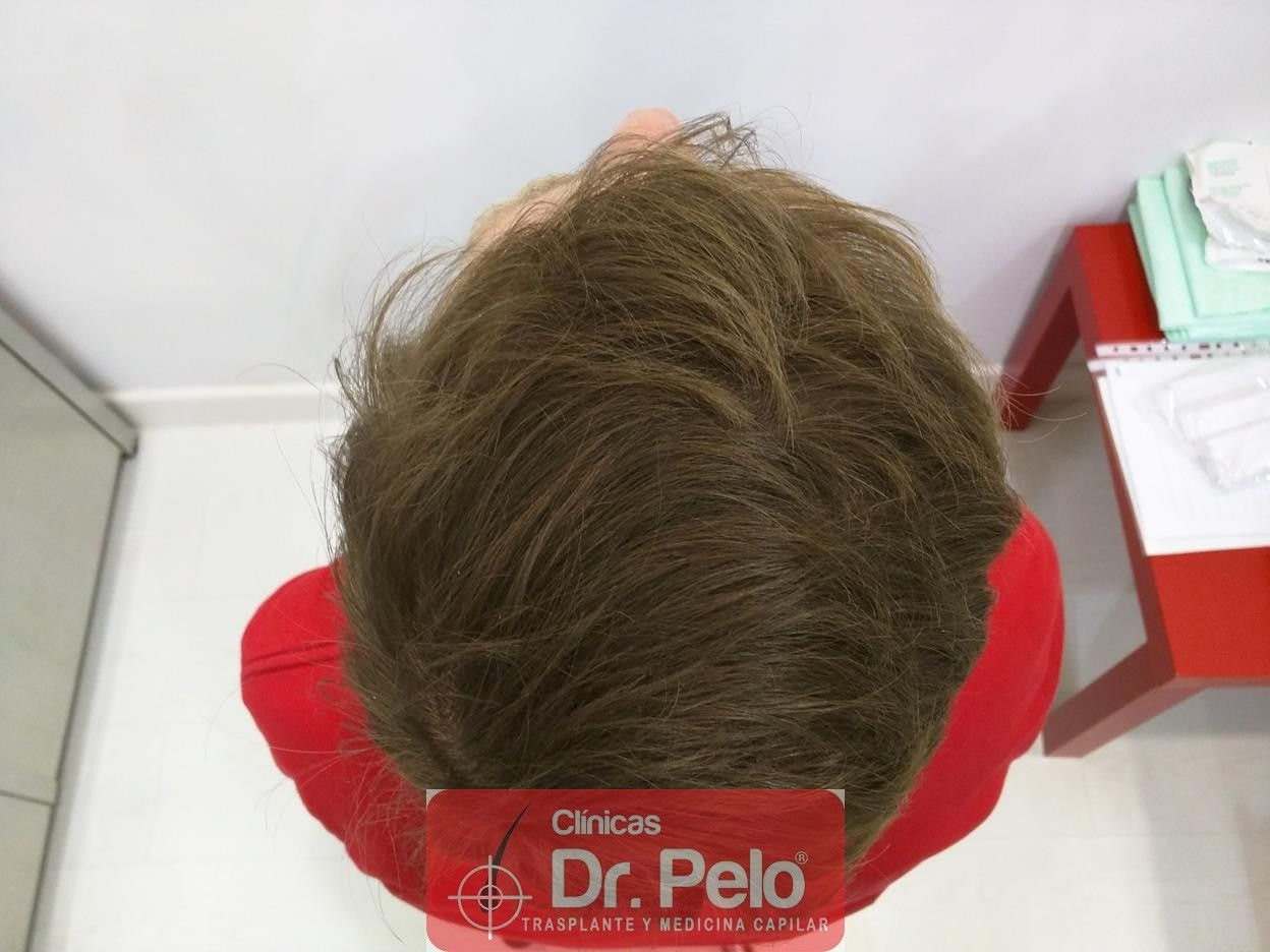 [Imagen: tratameinto-capilar-mesoterapia-laser-ledhair-14.jpg]
