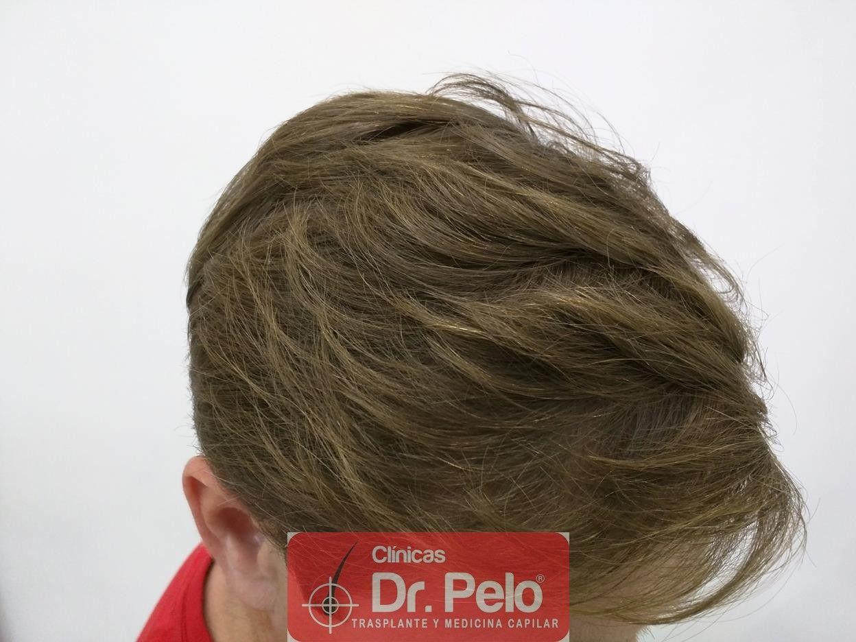 [Imagen: tratameinto-capilar-mesoterapia-laser-ledhair-15.jpg]