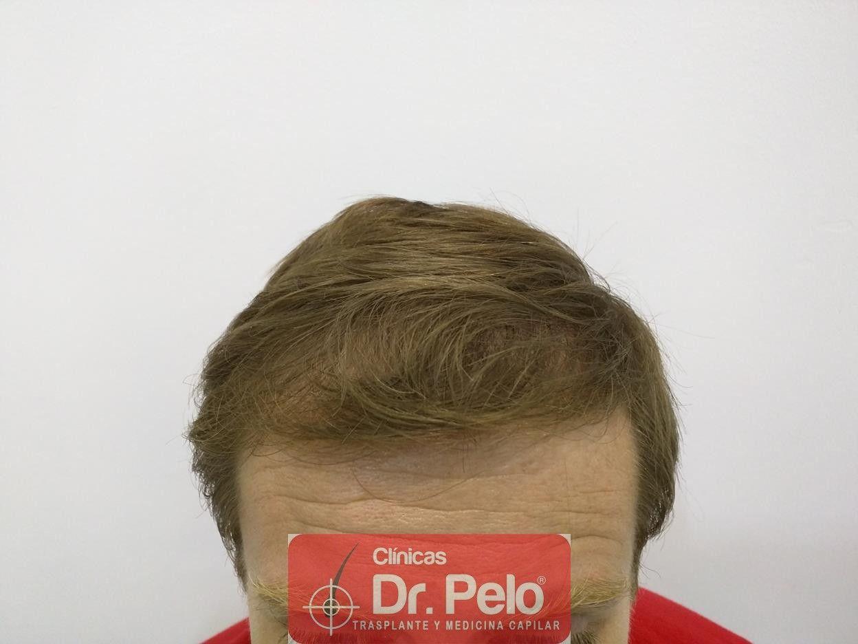 [Imagen: tratameinto-capilar-mesoterapia-laser-ledhair-2.jpg]