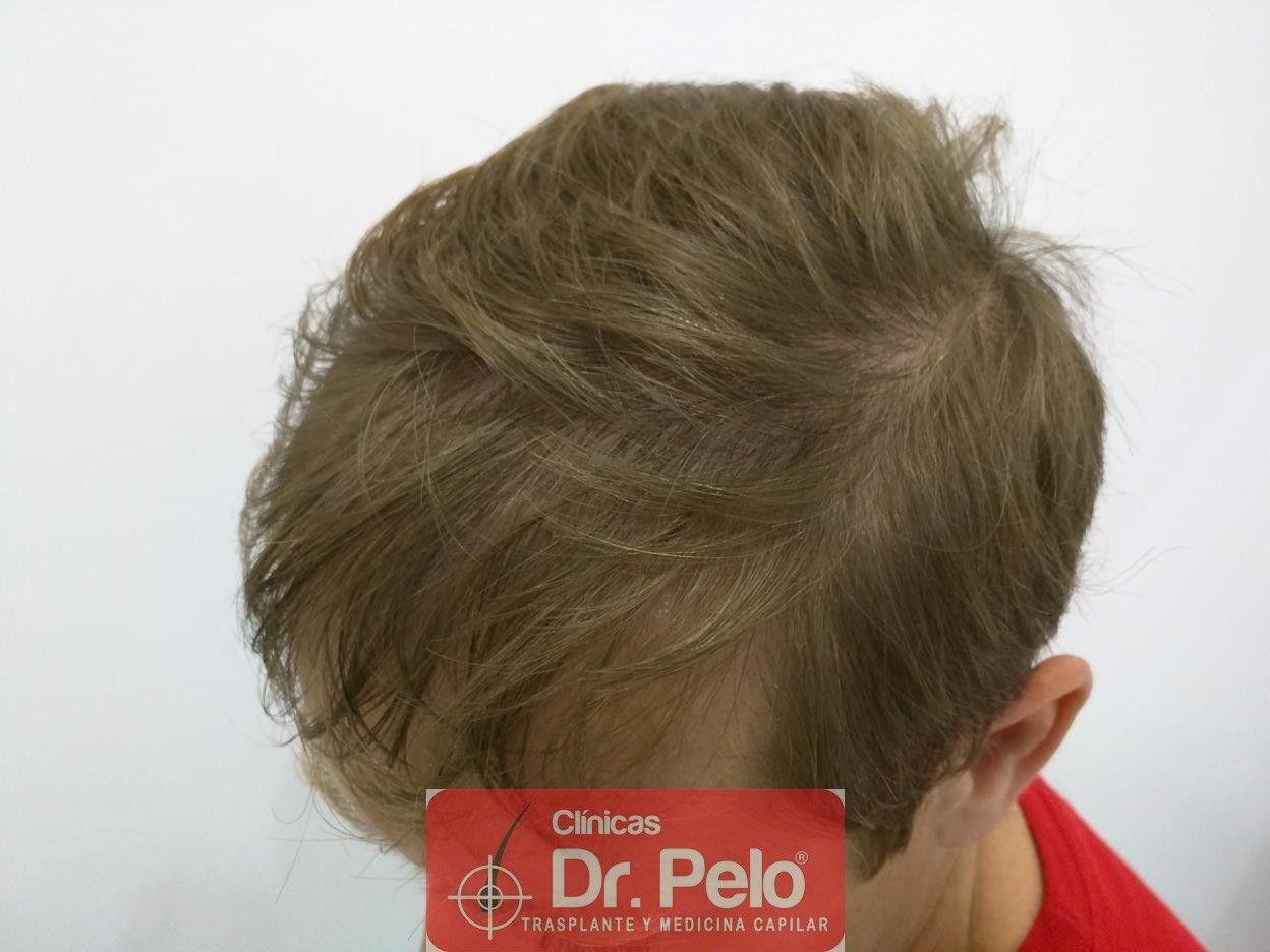 [Imagen: tratameinto-capilar-mesoterapia-laser-ledhair-5.jpg]