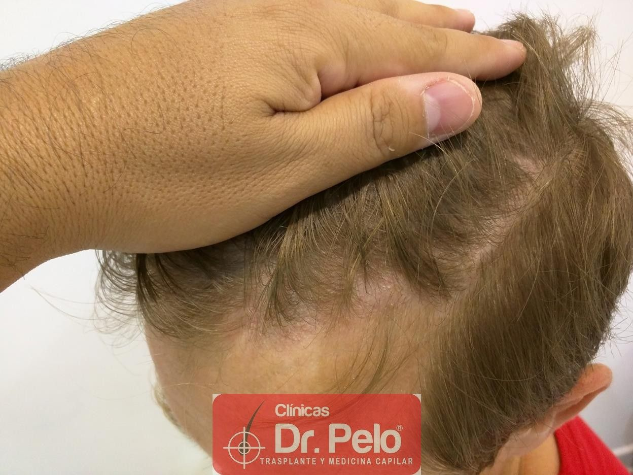 [Imagen: tratameinto-capilar-mesoterapia-laser-ledhair-6.jpg]