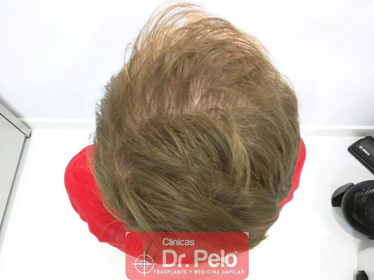 [Imagen: tratameinto-capilar-mesoterapia-laser-ledhair-7.jpg]