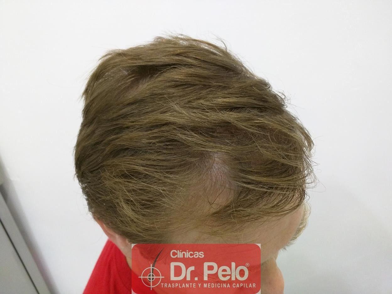 [Imagen: tratameinto-capilar-mesoterapia-laser-ledhair-8.jpg]