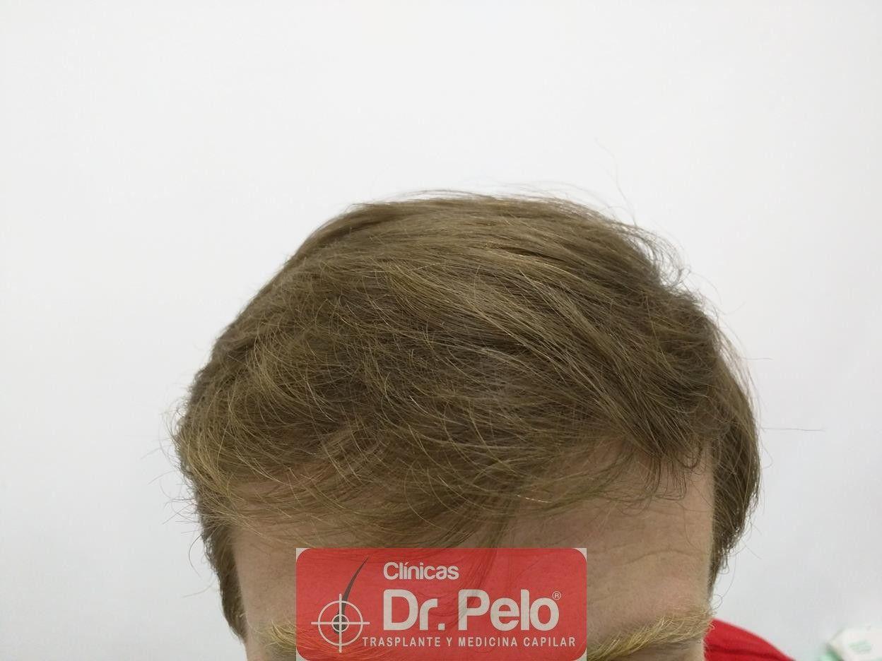 [Imagen: tratameinto-capilar-mesoterapia-laser-ledhair-9.jpg]