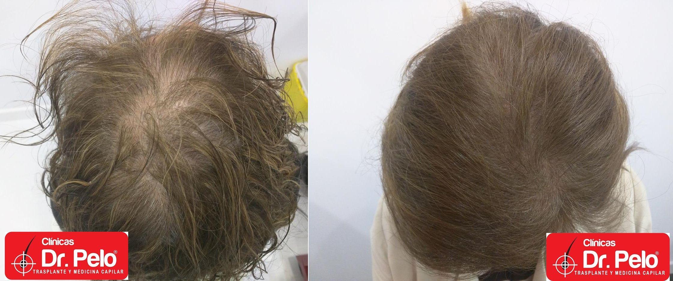 La máscara para los cabellos de la gelatina los cabellos grasos