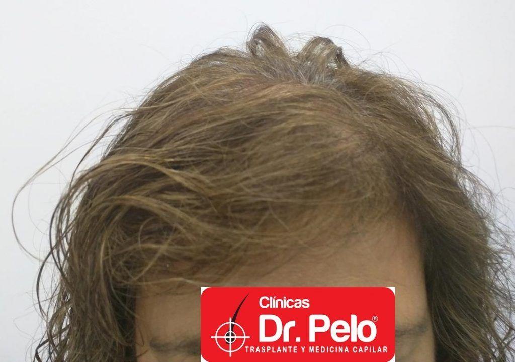 Encontrar el medio de la caída de los cabello