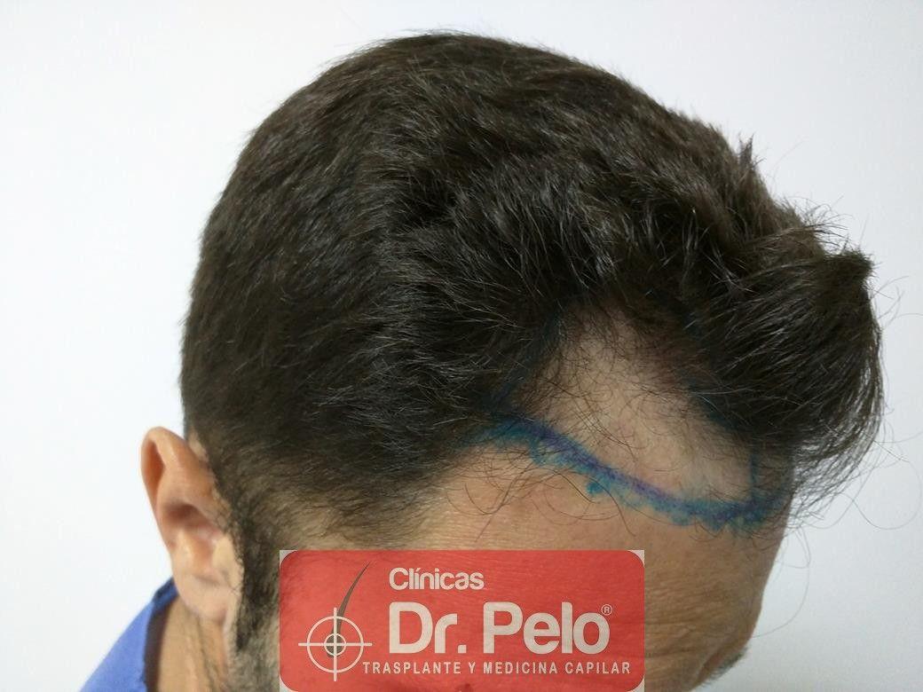 [Imagen: trasplante-capilar-clinica-dr-pelo-21.jpg]
