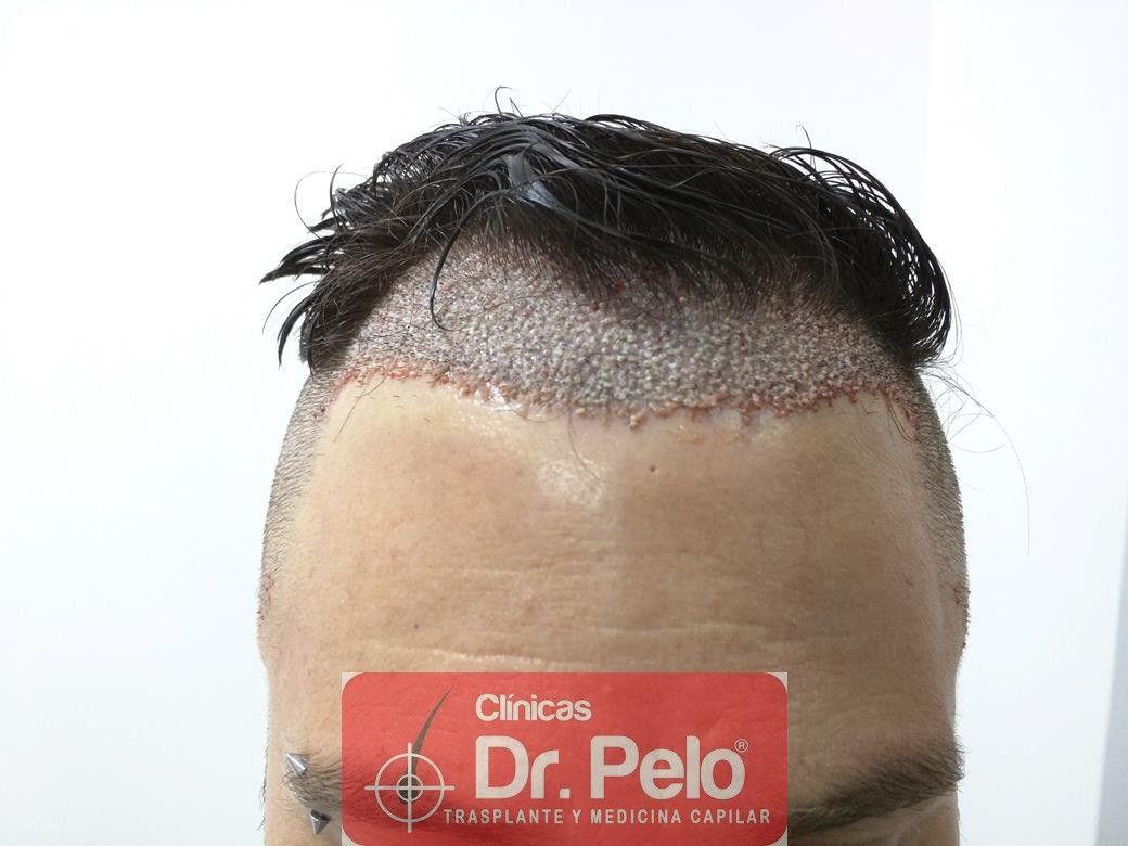 [Imagen: trasplante-capilar-clinica-dr-pelo-23.jpg]