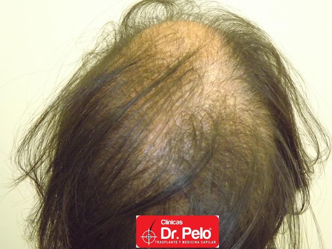 [Imagen: tratamiento-capilar-en-mujeres-10.jpg]
