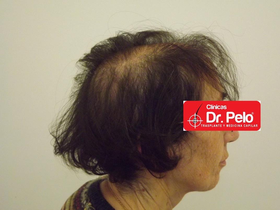 [Imagen: tratamiento-capilar-en-mujeres-11.jpg]