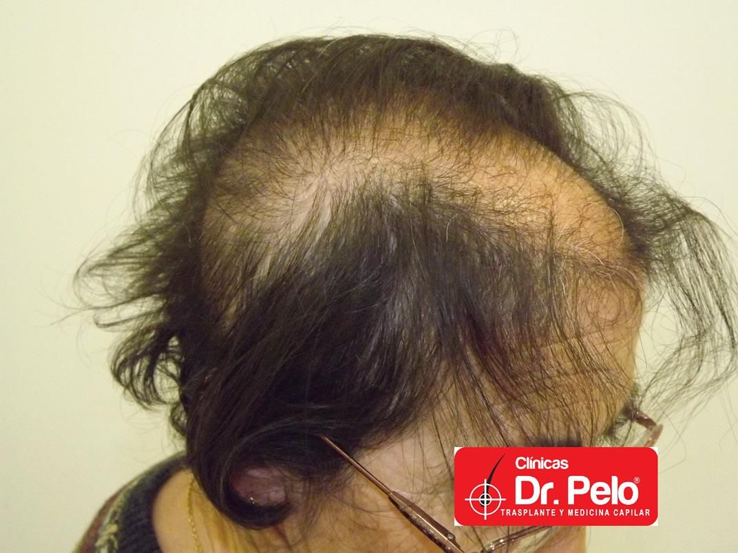 [Imagen: tratamiento-capilar-en-mujeres-12.jpg]
