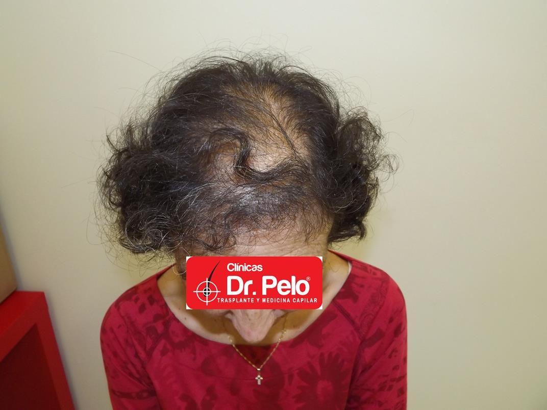 [Imagen: tratamiento-capilar-en-mujeres-13.jpg]