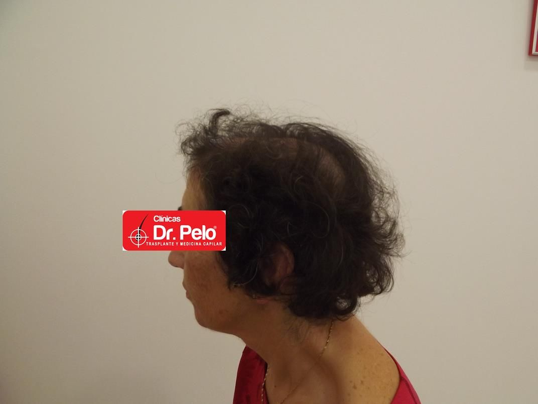 [Imagen: tratamiento-capilar-en-mujeres-14.jpg]
